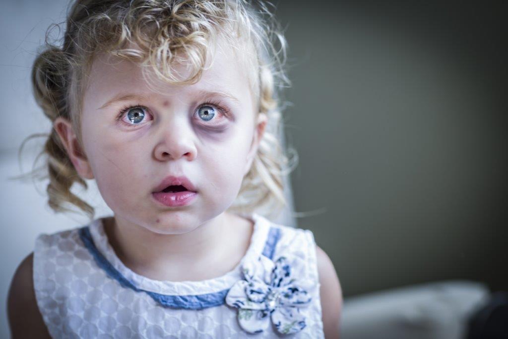 Violência infantil no Brasil; outro ranking negativo | Por Yeda Crusius